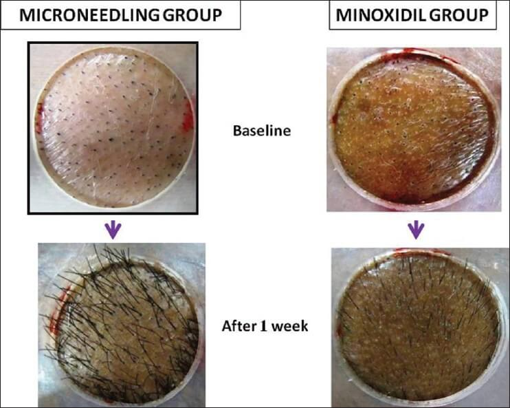 dermaroller keto hair loss